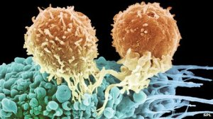 New Research Study: Scientists grow Cells capable of fighting Cancer and HIV