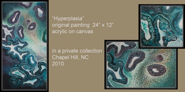 Hyperplasia by Artist Penny Oliver, Diagnosis Art @diagnosisart on Flickr