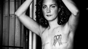 Stop censoring photos of men and women who have undergone mastectomies
