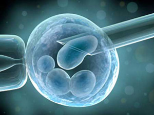 Multiple Babies with IVF May Up Breast Ca Risk