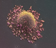 Lung cancer cell image