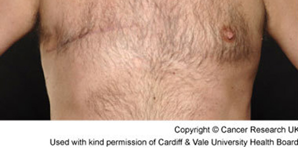breast-cancer-lump-men image