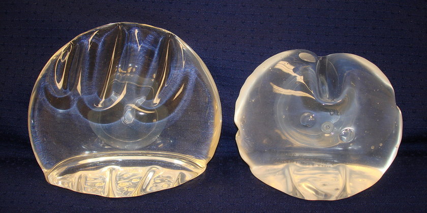 an analysis of the threats of silicone breast implants Breast implants: silicone breast  and threats faced by the vendors in the medical aesthetics market what are the key outcomes of the five forces analysis of the.