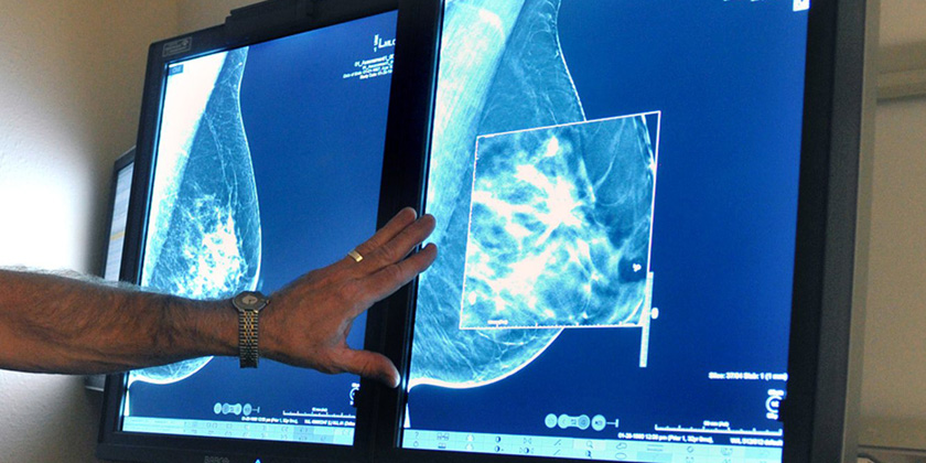 image of 3D breast tomosynthesis mammography