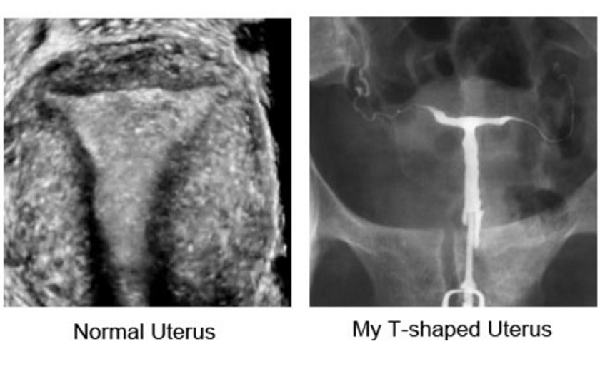 image of Normal vs T-shaped Uterus