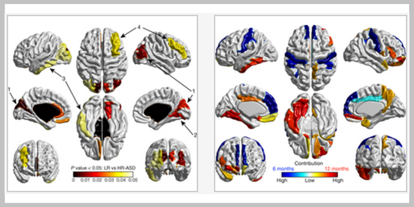Early brain development in infants at high risk for autism spectrumdisorder