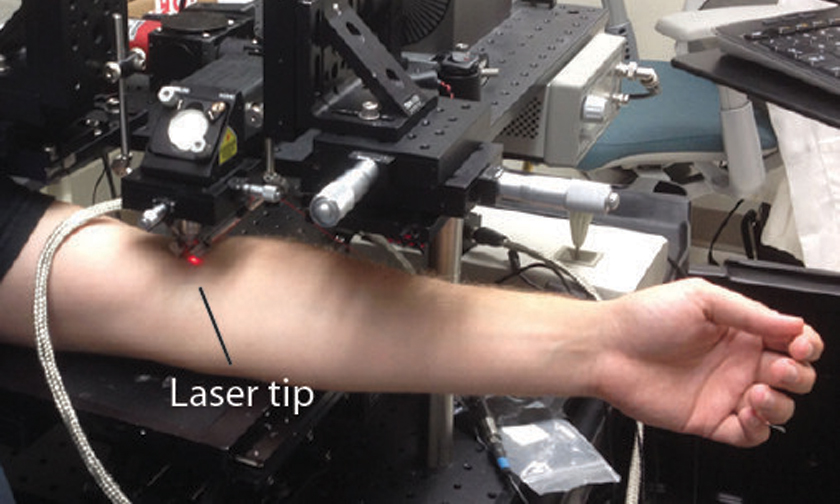 A New Laser Cytophone Device Able to Find and Destroy Cancer Cells in the Blood ?